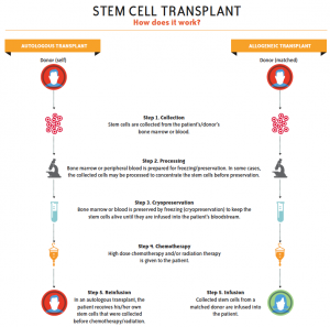 Stem cell transplant illustration