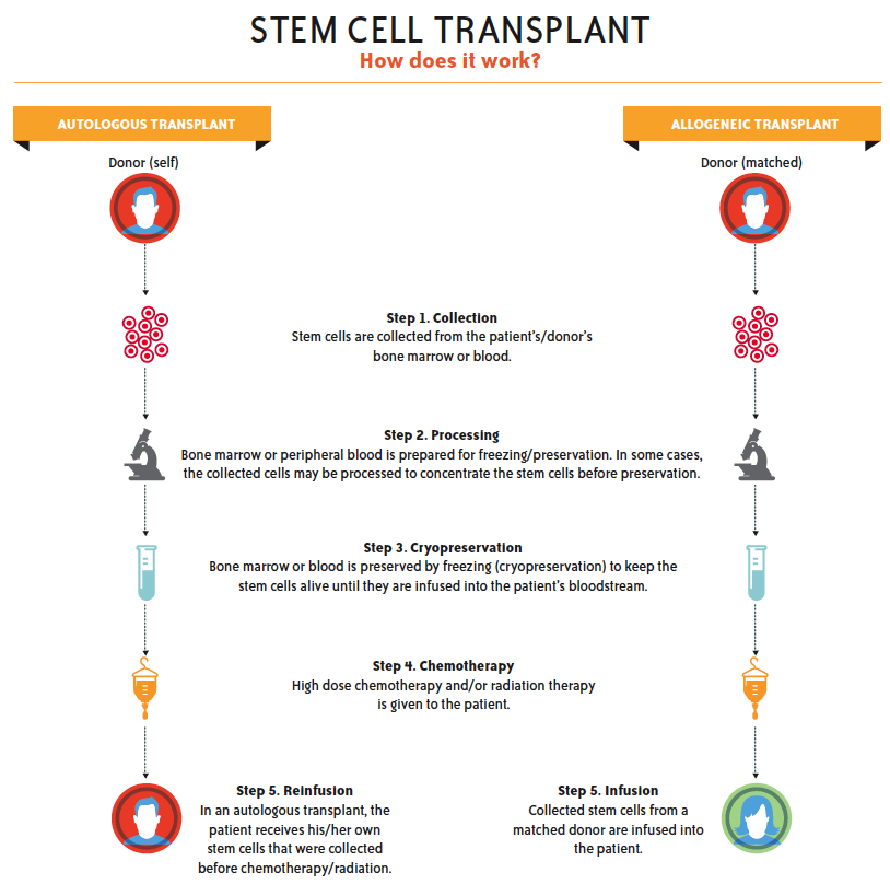 Watch What Is Autologous Stem Cell Transplantation video